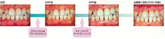 中等度歯周炎の治療ステップの図