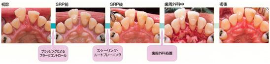 重度歯周炎の治療ステップの図